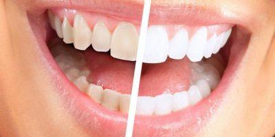 optiuni de albire dentara