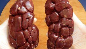 simptome pietre la rinichi