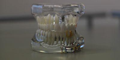 dentist din Drumul Taberei, plazadent.ro, cabinet stomatologic sector 6, urgente stomatologice, implant dentar Bucuresti, aparat dentar ieftin, extractie masea de minte, endodontie la microscop, implanturi dentare sector 6, clinica dentara Drumul Taberei, clinica stomatologica Plaza Dent, dentist Drumul Taberei